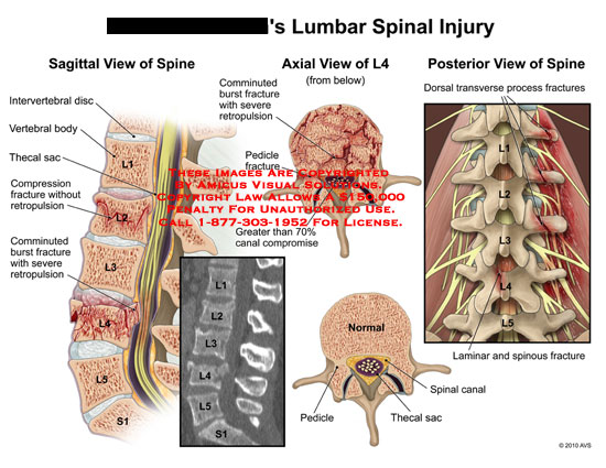 Spinal Injury And Cialis