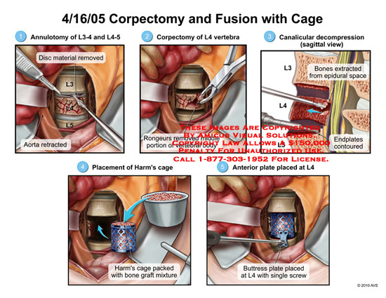 amicus,surgery,corpectomy,fusion,cage,annulotomy,disc,material,removed,aorta,retracted,vertebra,rongeurs,middle,portion,vertebral,body,canallcular,decompression,bones,extracted,epidural,space,endplates,contoured,harm