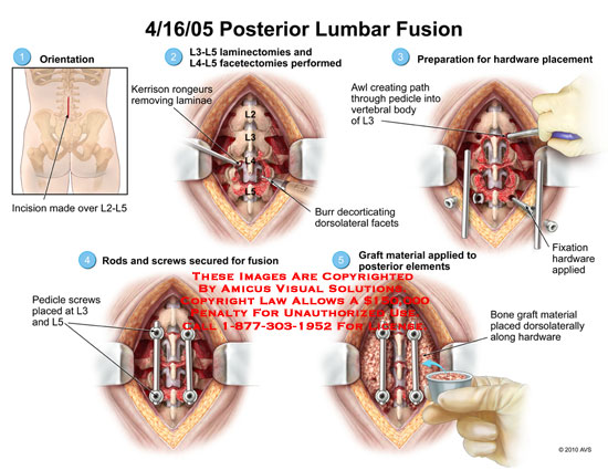 amicus,surgery,incision,laminectomies,laminectomy,facetectomies,facetectomy,performed,kerrison,rongeurs,removing,remove,laminae,hardware,placement,awl,creating,path,through,pedicle,vertebral,body,fixation,applied,rods,screwed,secured,fusion,graft,material,applied,elements,dorsolaterally