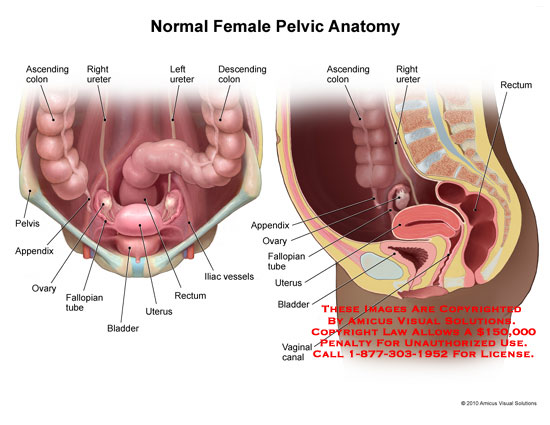 amicus,anatomy,normal,female,pelvic,ascending,colon,ureter,descending,pelvis,appendix,ovary,fallopian,tube,bladder,uterus,rectum,iliac,vessels