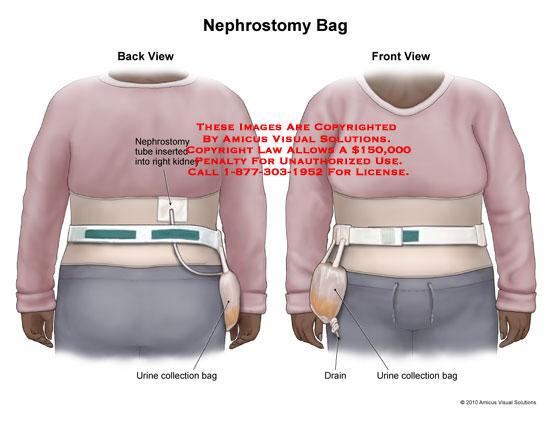 Nephrostomy Bag No Description Available