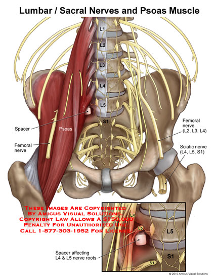 amicus illustration of amicus,injury,lumbar,sacral,nerves,psoas, Muscles