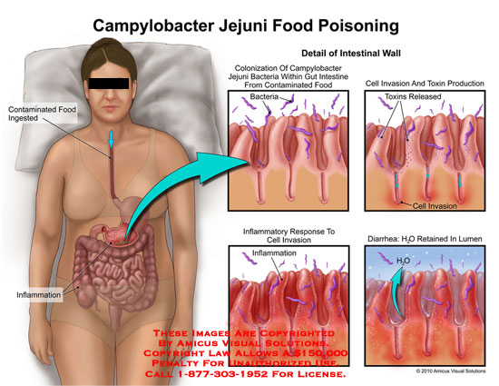 amicus,injury,campylobacter,jejuni,food,poisoning,contaminated,food,injested,inflammation,intestinal,wall,intestine,colonization,gut,bacteria,cell,invasion,toxin,production,released,inflammatory,response,diarrhea,h2o,water,retained,lumen