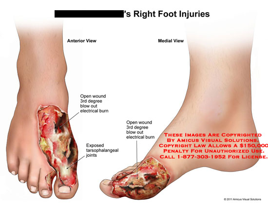 AMICUS Illustration of amicus,injury,foot,right,open,wound,3rd ...