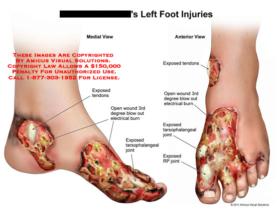 Can run torn tendon on bottom of foot touch