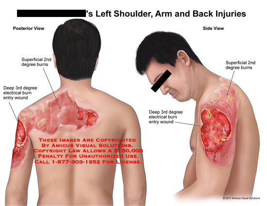 amicus,injury,shoulder,arm,back,burns,superficial,2nd,second,degree,deep,3rd,third,electrical,entry,wound