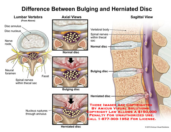 Amicus illustration of amicusmedicalbulgingherniateddisc no description available ccuart Choice Image