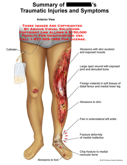 amicus,injury,summary,legs,catheter,abrasions,avulsions,exposed,wound,denuded,shin,fracture,ankle,foot