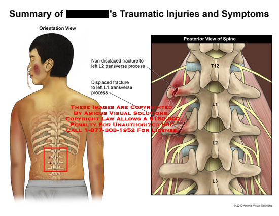 amicus,injury,traumatic,symptoms,summary,non-displaced,fracture,L2,transverse,process,posterior,spine