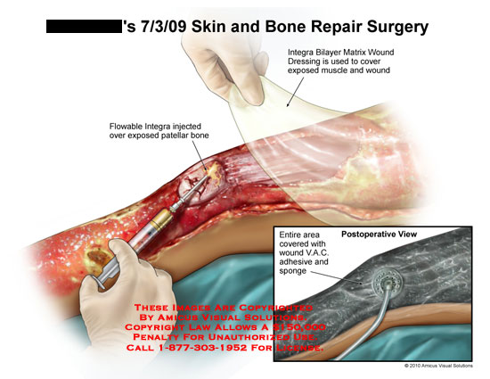 amicus,surgery,skin,bone,repair,integra,bilayer,matrix,wound,dressing,cover,exposed,muscle,flowable,injected,patellar,entire,area,covered,wound,vac,adhesive,sponge,postoperative,view
