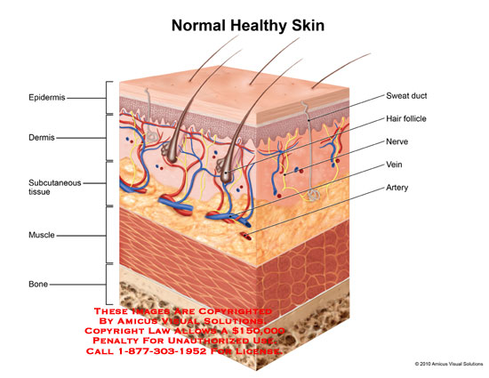 amicus,anatomy,normal,healthy,skin,epidermis,subcutaneous,tissue,muscle,bone,sweat,duct,hair,follicle,nerve,vein,artery