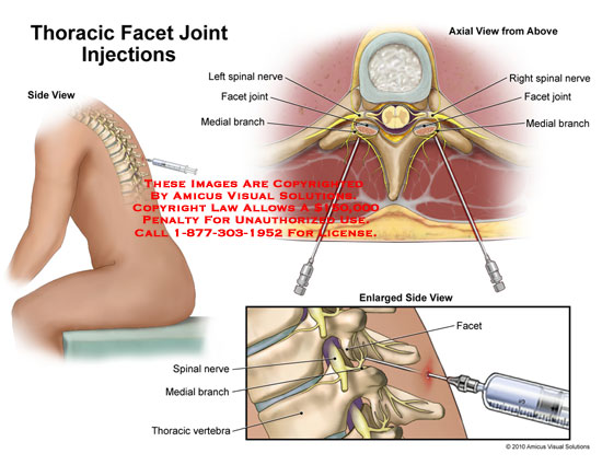 amicus,surgery,thoracic,facet,joint,injections,spinal,nerve,medial,branch,vertebra,enlarged