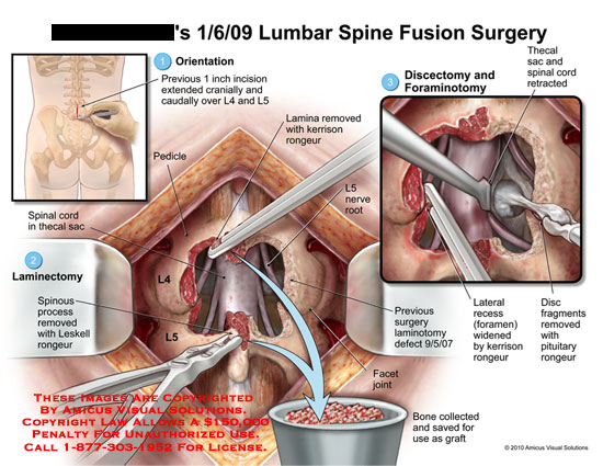 amicus,surgery,lumbar,spine,fusion,previous,incision,extended,cranially,caudally,l4,l5,laminectomy,spinous,process,removed,leskell,rongeur,discectomy,foraminotomy,thecal,sac,spinal,cord,retracted,pedicle,lamina,removed,kerrison,nerve,root,defect,facet,joint,bone,collected,saved,graft,use,lateral,recess,foramen,widened,disc,fragments,removed,pituitary