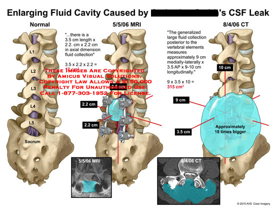 amicus,injury,enlarging,fluid,cavity,caused,csf,leak,collection,spine,cerebrospinal,mri,ct