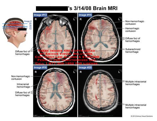 amicus,radiology,brain,mri,diffuse,foci,hemorrhages,non-hemorrhagic,contusion,intracranial,subarachnoid,multiple,intracranial