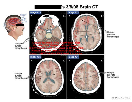 amicus,radiology,brain,ct,multiple,punctate,hemorrhages