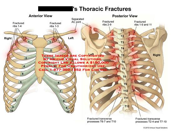 Types Of Rib Fractures JAavYOQGQAO 7CID4x5emucrZyPH5ycQqrfDpkR9VxR58