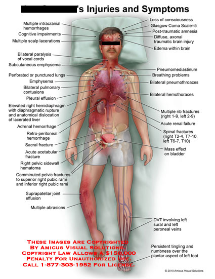 amicus,injury,injuries,symptoms,multiple,intracranial,hemorrhages,cognitive,impairments,scalp,lacerations,paralysis,vocal,cords,subcutaneous,emphysema,perforated,punctured,lungs,pulmonary,contusions,pleural,effusion,elevated,hemidiaphragm,diaphragmatic,rupture,anatomical,dislocation,lacerated,liver,adrenal,hemmorhage,sacral,fracture,acetabular,pelvic,sidewall,hematoma,comminuted,pubic,rami,suprapatellar,joint,effusion,abrasions,consciousness,loss,glasgow,coma,scale,post,traumatic,amnesia,diffuse