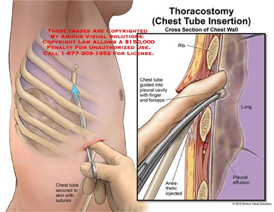 amicus,surgery,thoracostomy,chest,tube,insertion,cross,section,wall,rib,guided,pleural,cavity,finger,forceps,anesthetic,injected,effusion,lung,secured,skin,sutures