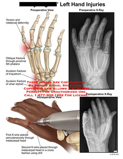 amicus,injury,hand,injuries,xray,torsion,rotational,deformity,oblique,fracture,phalanx,avulsion,triquetrum,ulnar,styloid,k,wire,placed,percutaneously,through,metacarpal,head,cross,fashion,drill
