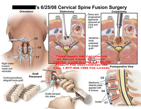 amicus,surgery,cervical,spine,fusion,incision,right,sided,retracted,discectomy,discs,longitudinal,ligaments,removed,corpectomy,vertebral,body,prepared,accept,graft,nerve,decompressed,corticocancellous,allograft,bone,placement,tamped,medtronic,atlantis,plate,applied,screws