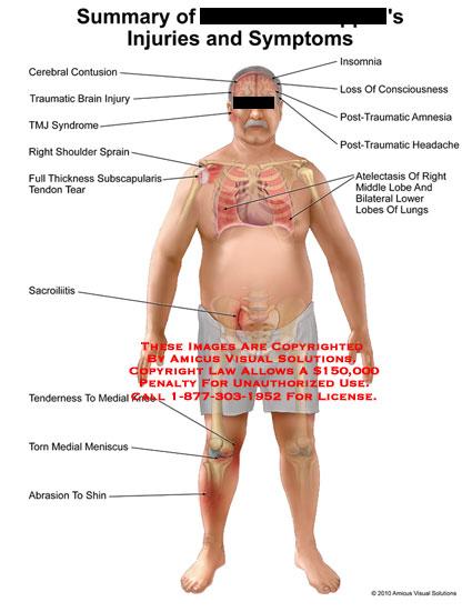 amicus,injury,injuries,symptoms,summary,cerebral,contusion,traumatic,brain,tmj,syndrome,shoulder,sprain,full,thickness,subscapularis,tendon,tear,sacrolitis,tenderness,knee,meniscus,abrasion,shin,insomnia,loss,consciousness,post,traumatic,amnesia,headache,atelectasis,lobe,lower,lungs