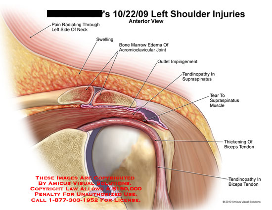 Amicus Illustration Of Amicusinjuryshoulderleftpainradiating