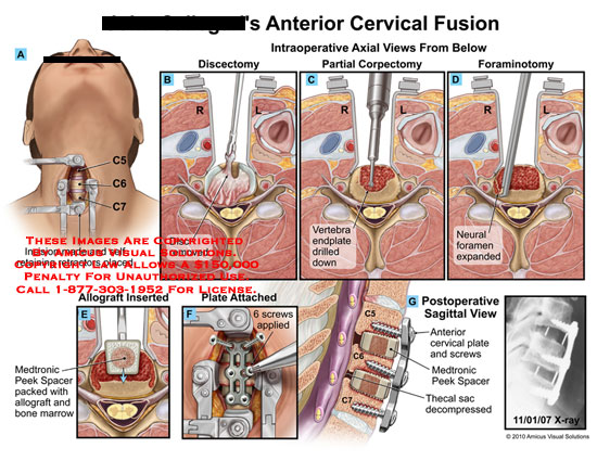 amicus,surgery,cervical,fusion,anterior,incision,made,self,retaining,retractors,placed,discectomy,removed,partial,corpectomy,vertebra,endplate,drilled,down,foraminotomy,neural,foramen,expanded,allograft,inserted,medtronic,peek,spacer,packed,bone,marrow,plate,attached,screws,thecal,sac,decompressed,xray
