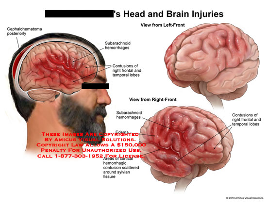 amicus,injury,head,brain,cephalohematoma,posteriorly,subarachnoid,hemorrhages,contusions,frontal,temporal,lobes,edema,areas,cortical,hemorrhagic,scattered,around,sylvian,fissure,frontal,temporal,lobes
