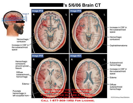 amicus,radiology,brain,ct,hemorrhagic,contusion,increase,csf,cerebrospinal,fluid,subarachnoid,space,around,sylvian,fissure,diffuse,hemorrhage,edema,punctate,occipittal,horn,cephalohematoma