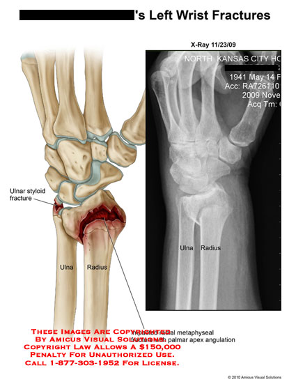 amicus,injury,wrist,fractures,xray,ulnar,styloid,radius,impacted,metaphyseal,palmar,apex,angulation