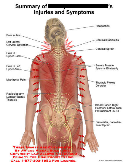amicus,injury,injuries,symptoms,summary,pain,jaw,cervical,deviation,upper,back,arm,myofascial,radiculopathy,lumbar,sacral,thoracic,headaches,radiculitis,sprain,severe,muscle,spasms,pleux,disorder,broad,based,disc,protrusion,l5,s1,sacrolitis,sacroiliac,joint,sprain