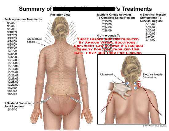 amicus,injury,summary,treatments,acupuncture,needle,sacroiliac,joint,injection,multiple,kinetic,activities,complete,spinal,region,ultrasounds,cervical,electrical,muscle,stimulations