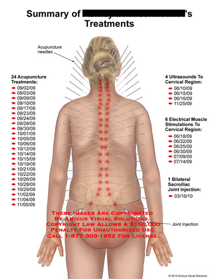 amicus,surgery,treatments,summary,acupuncture,needles,ultrasounds,cervical,region,electrical,muscle,stimulations,sacroiliac,joint,injection