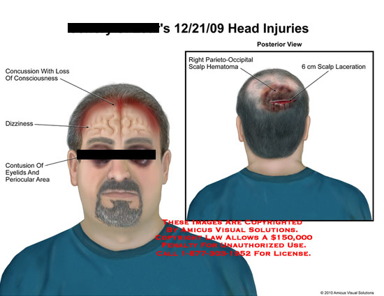 amicus,injury,head,concussion,loss,consciousness,dizziness,confusion,eyelids,periocular,area,parieto,occipital,scalp,hematoma,laceration