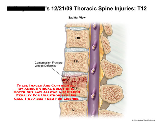 Thoracic Spine Injuries T12