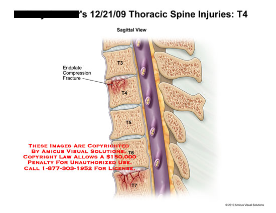 amicus,injury,thoracic,spine,t4,endplate,compression,fracture