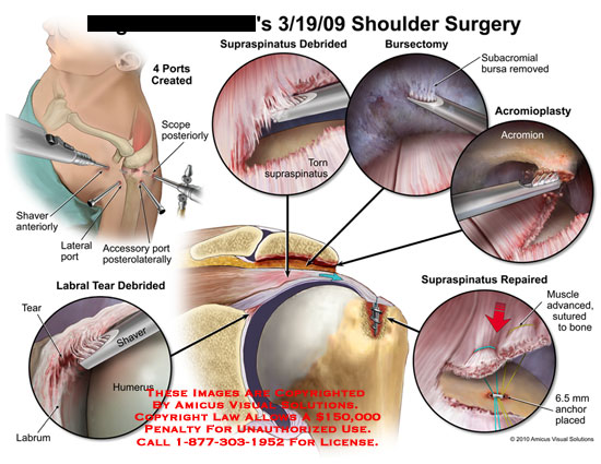 amicus,surgery,shoulder,ports,created,scope,posteriorly,accessory,posterolaterally,shaver,supraspinatus,debrided,torn,bursectomy,subacromial,bursa,removed,acromioplasty,labral,tear,labrum,acromion,repair,muscle,advanced,sutured,bone,anchor,placed