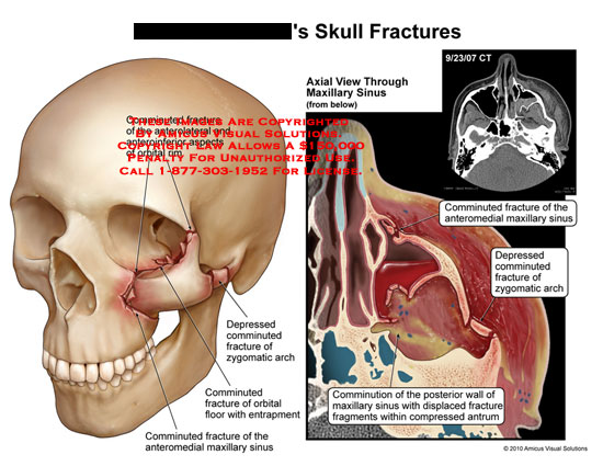 amicus,injury,skull,fractures,comminuted,anteriorlateral,anterioinferior,aspects,orbital,rim,depressed,zygomatic,arch,orbital,floor,entrapment,anteromedial,maxillary,sinus,ct,comminution,wall,displaced,fragments,compressed,antrum