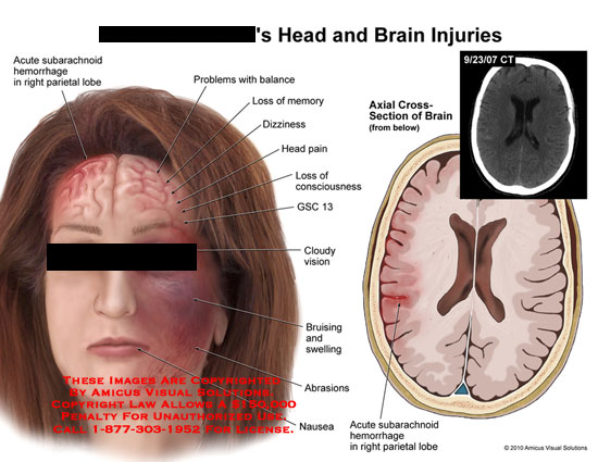 amicus,injury,head,brain,acute,subarachnoid,hemorrhage,parietal,lobe,balance,problems,memory,loss,dizziness,pain,loss,consciousness,gsc,cloudy,vision,bruising,swelling,abrasions,nausea,ct