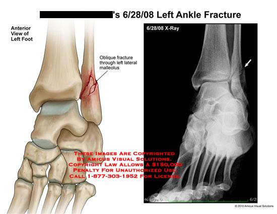 amicus,injury,ankle,fracture,oblique,through,malleolus,xray