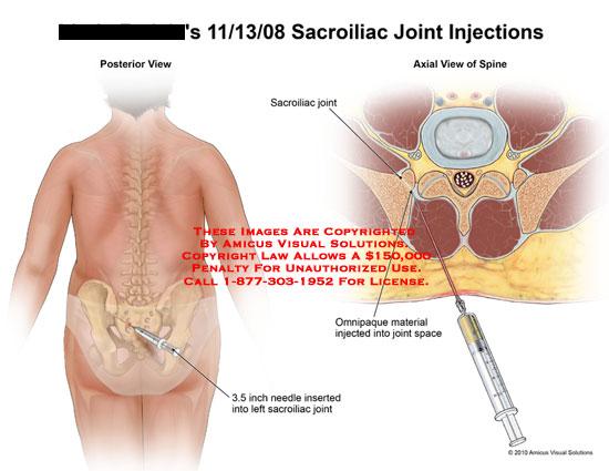 Sacroiliac Articulation