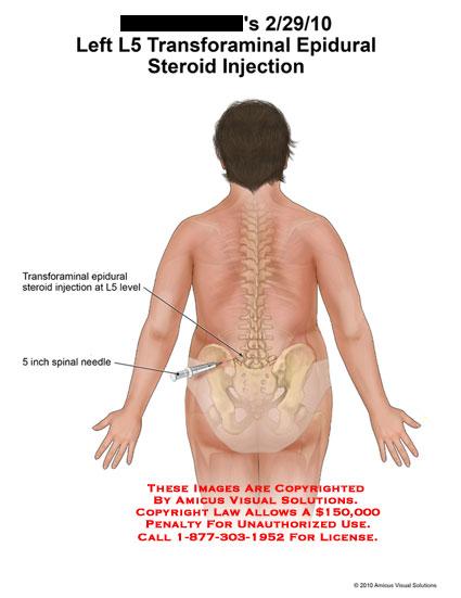 steroids for sciatica pain