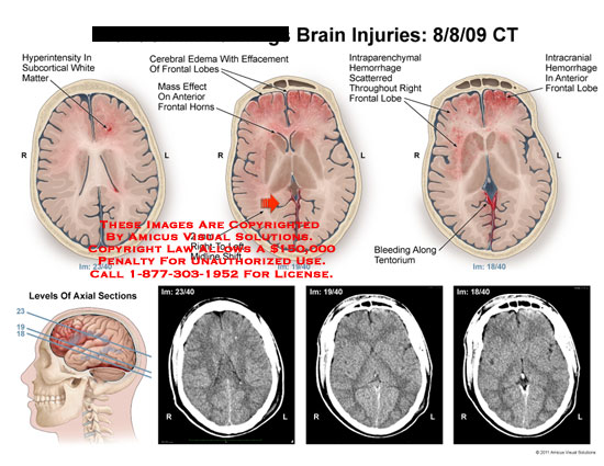 amicus,injury,brain,hyperintensity,subcortical,white,matter,edema,frontal,lobe,intraparenchymal,hemorrhage,tentorium