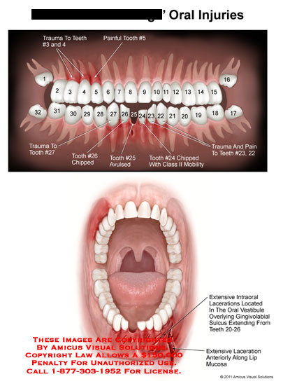 amicus,injury,oral,trauma,teeth,painful,tooth,chipped,avulsed,class,ii,mobility,extensive,intraoral,lacerations,located,vestibule,overlying,gingivolabial,sulcus,extending,along,lip,mucosa