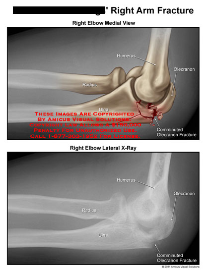 amicus,radiology,arm,fracture,injury,elbow,medial,view,humerus,olecranon,comminuted,ulna,radius,lateral,xray
