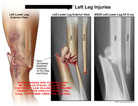 amicus,injury,leg,fractures,displaced,tibia,fibula,open,x-ray