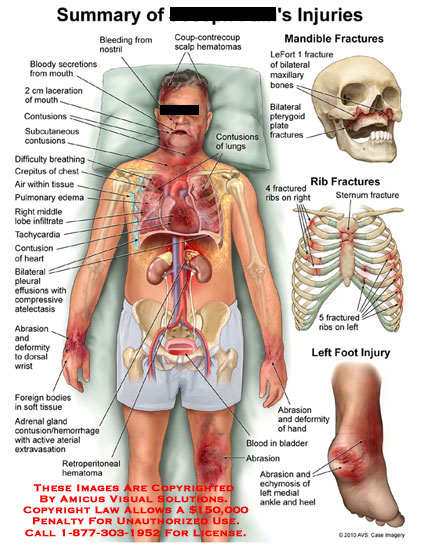 amicus,injury,summary,bloody,secretions,laceration,mouth,contusions,subcutaneous,difficulty,breathing,crepilus,chest,air,tissue,pulmonary,edema,middle,lobe,infiltrate,tachycardia,contusion,heart,pleural,effusions,compressive,atelectasis,abrasion,deformity,wrist,foreign,bodies,soft,adrenal,gland,contusion,hemorrhage,active,arterial,extravasation,retroperitoneal,hematomas,bleeding,nostril,coup-contrecoup,scalp,LeFort,1,maxillary,bones,pterygoid,plate,fractures,rib,fractured,sternum,foot,hand,bladd