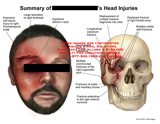 amicus,injury,head,fracture,soft,tissue,frontotemporal,scalp,laceration,forehead,hyphema,orbital,wall,frontal,sinus,orbit,longitudinal,calvarium,fragments,comminuted,zygomatic,arch,malar,maxillary,bone,coronoid