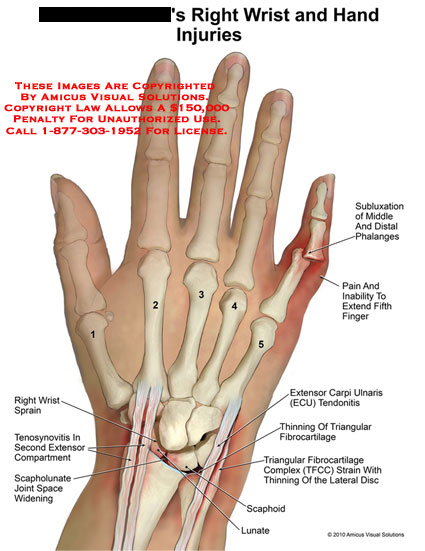 amicus,injury,hand,wrist,subluxation,phalanges,pain,inability,extend,finger,extensor,carpi,ulnaris,ECU,tendonitis,thinning,triangular,fibrocartilage,complex,TFCC,strain,lateral,disc,scaphoid,lunate,scapholunate,joint,space,widening,tenosynovitis,extensor,compartment,sprain